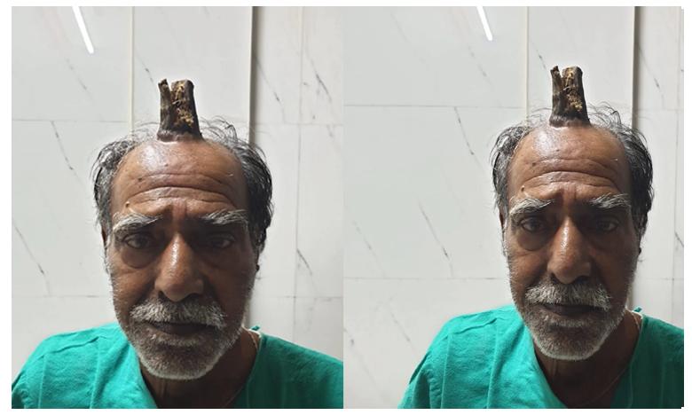 Rare Condition Causes MP Man To Grow 'Devil's Horn' After Head Injury, వృద్ధుడి తలపై మొలిచిన కొమ్ము!