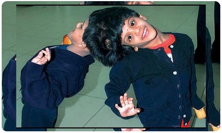 Veena vani conjoined twins enter 17th year, 17వ ఏడాదిలోకి.. వీణా-వాణీలు..!!
