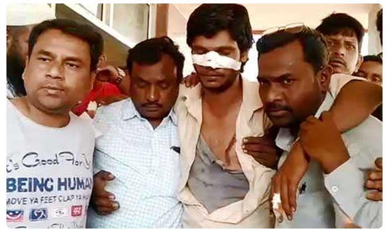Bodhan Municipal Election War 2020, పుర పోరు : టీఆర్ఎస్ అభ్యర్థి ముక్కు కొరికిన కాంగ్రెస్ అభ్యర్థి..